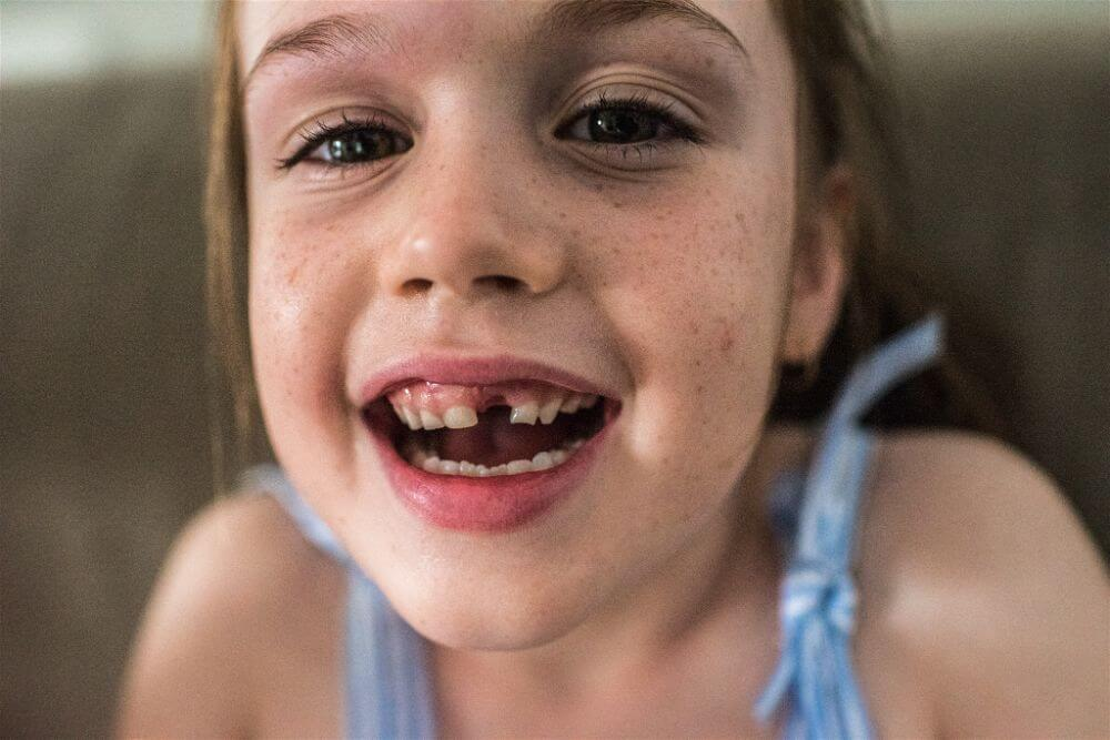 Little girl missing tooth at documentary family photography session
